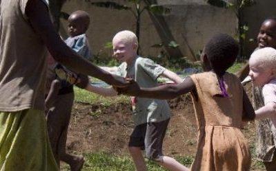 Albinismo – Lichaam